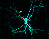 Die angeregten Neuronen nach der Bestrahlung mit Licht mit Hilfe von Optogenetik. Foto: Ute Hochgeschwender, Central Michigan University