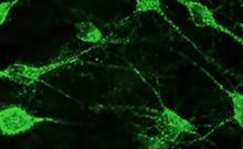 Stammzellen aus menschlicher Nase heilen Parkinson bei Ratten